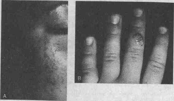 Как удалить папиллому у ребенка на губе